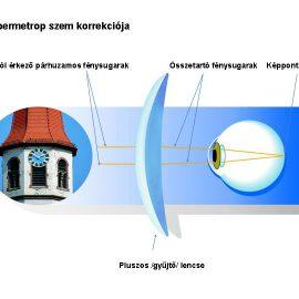 A hypermetróp (plusszos) szem
