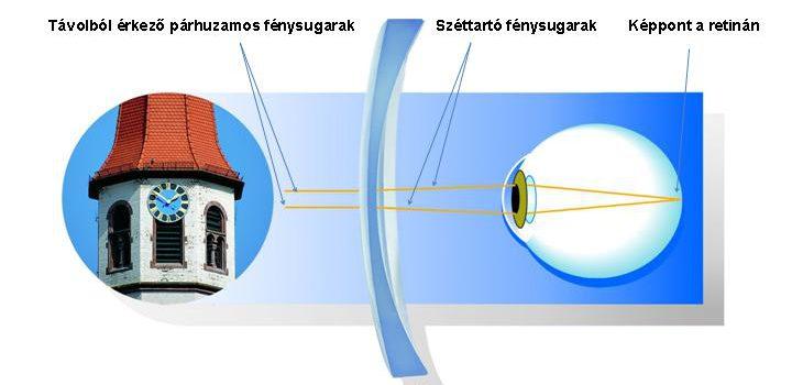 Myóp (mínuszos) szem