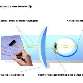 A presbyop (öregszeműség) szem