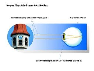helyes-fenytoresu-szem-kepalkotasa