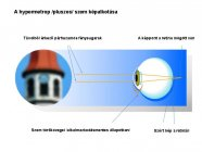 hypermetrop-szem-kepalkotasa