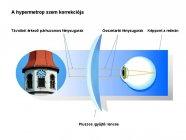 hypermetrop-szem-korrekcioja