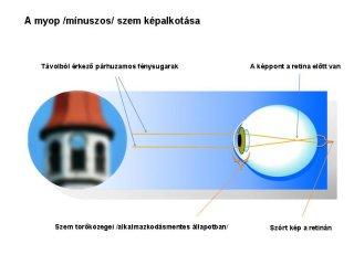 myop-szem-kepalkotasa