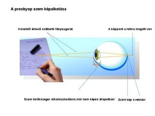 presbyop-szem-kepalkotasa