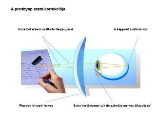 presbyop-szem-korrekcioja